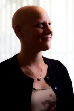 """21-year-old Sydney Olson of Sutton, Neb. lives with alopecia, an autoimmune skin disease resulting in hair loss, and recently published a children's book, """"The Curse of the Fates,"""" in an effort to help others and to promote awareness of the disease. KRISTIN STREFF/Lincoln Journal Star"""